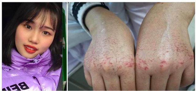 Bác sĩ 28 tuổi đột tử sau 10 ngày đối phó virus corona - Ảnh 3.