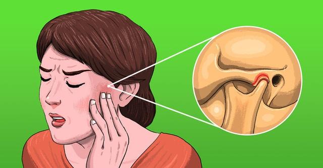 5 cơn đau khó hiểu khiến bạn dễ nhầm lẫn với đau răng nhưng có thể đó là dấu hiệu của những căn bệnh khó chữa - Ảnh 1.