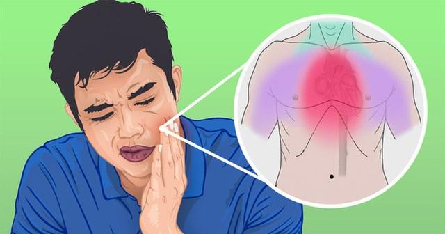 5 cơn đau khó hiểu khiến bạn dễ nhầm lẫn với đau răng nhưng có thể đó là dấu hiệu của những căn bệnh khó chữa - Ảnh 4.