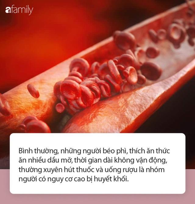 Bất luận nam hay nữ, có 4 biểu hiện này khi ngủ rất có thể mạch máu bị tắc nghẽn - Ảnh 1.