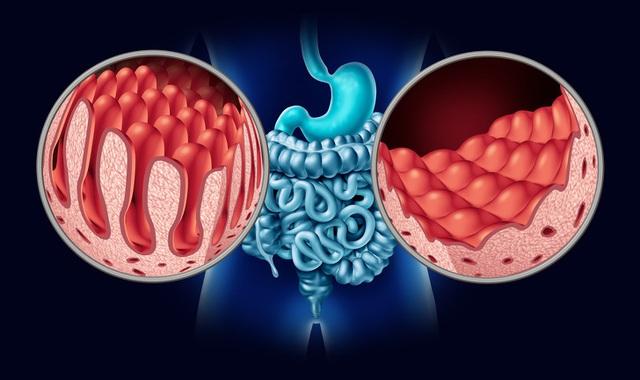 12 căn bệnh nguy hiểm có triệu chứng dễ bị nhầm lẫn, đừng chủ quan bỏ qua khiến bệnh tiến triển nhanh và chuyển biến cực xấu!  - Ảnh 6.