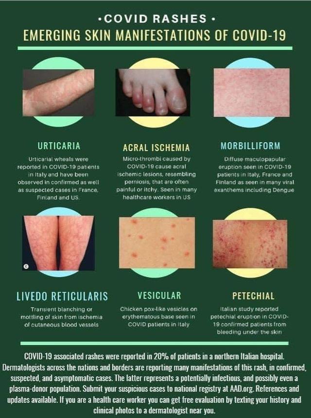 BS Việt tại Mỹ cảnh báo các triệu chứng trên da trong bệnh nhân nhiễm Covid-19 - Ảnh 4.