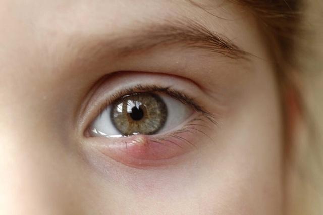 """8 dấu hiệu cảnh báo bệnh tật được """"khắc"""" rất rõ trên mắt: Ai cũng cần đọc để đối chiếu với sức khỏe bản thân - Ảnh 1."""