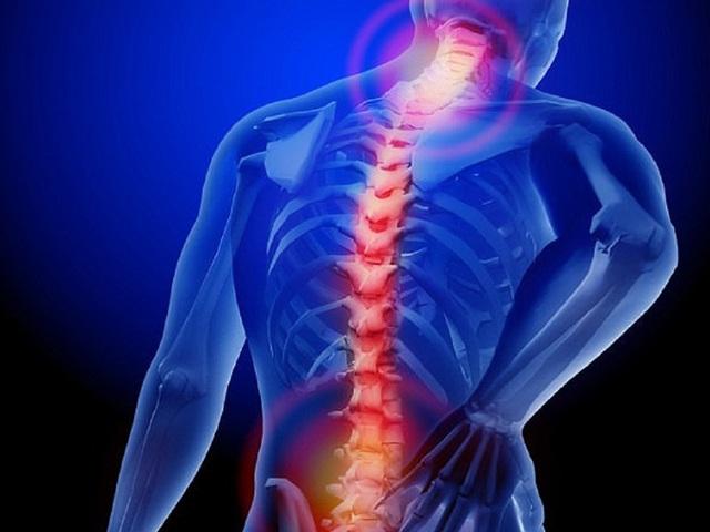 Tự đi đấm bóp khi đau lưng, chàng trai 27 tuổi suýt liệt tứ chi: Bác sĩ Trần Quốc Khánh cảnh báo 5 lưu ý khi chữa căn bệnh ai cũng từng gặp này - Ảnh 1.