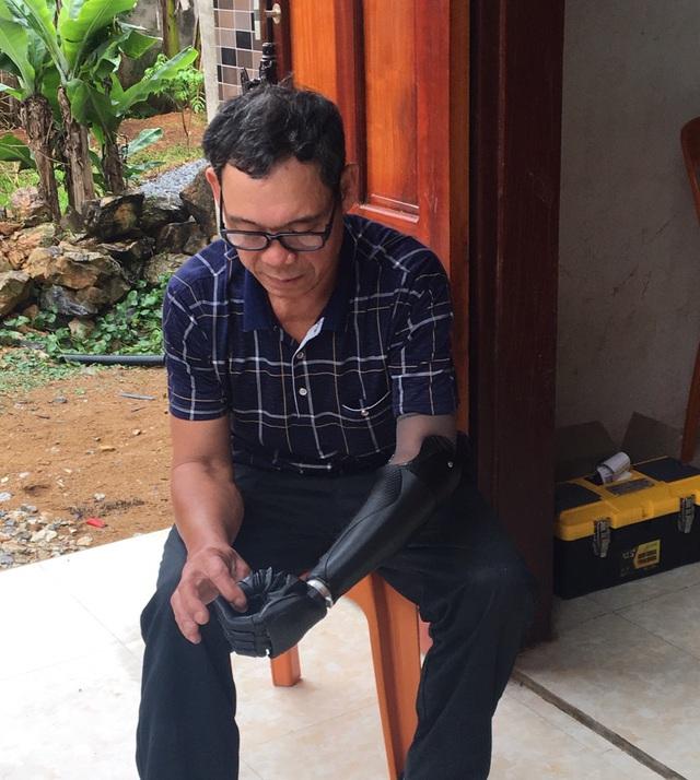 Trịnh Khánh Hạ: Cô gái Việt 25 tuổi mang cánh tay giả sang Hà Lan dự thi startup quốc tế và câu chuyện đằng sau về một vị thần khuyết tật - Ảnh 2.