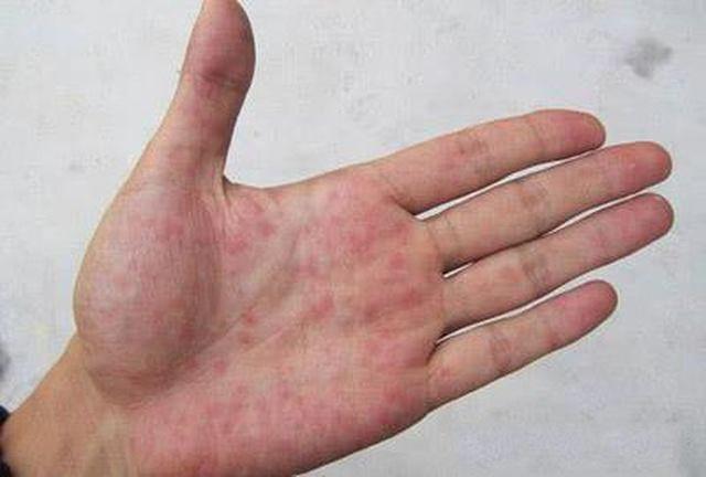 Cơ thể xuất hiện 1 đỏ, 2 vàng, 1 đen: Dấu hiệu mắc ung thư gan - Ảnh 1.