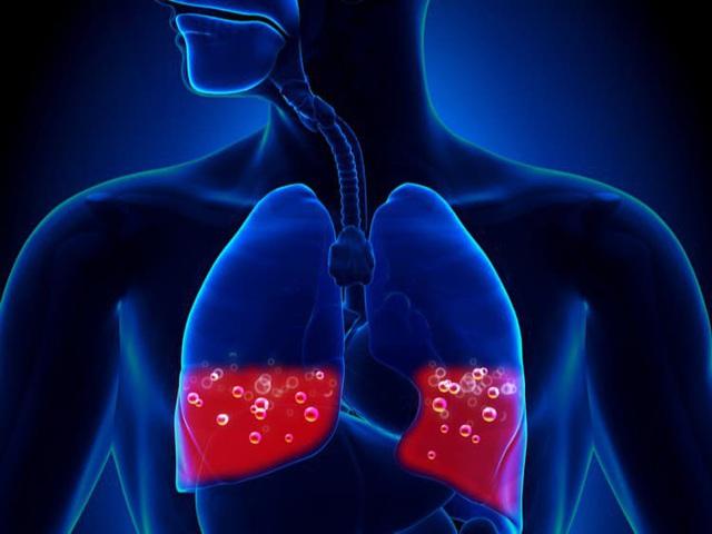 10 triệu chứng tưởng đơn giản nhưng là cảnh báo nghiêm trọng của bệnh tim, thận và phổi: Càng chủ quan hậu quả càng đáng tiếc - Ảnh 3.