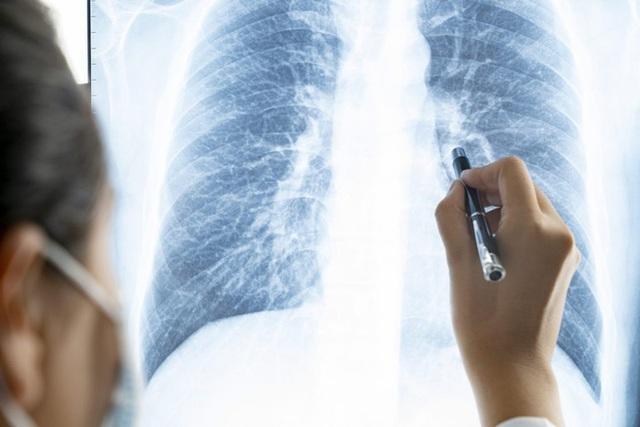 Tại sao không hút thuốc lá vẫn mắc ung thư phổi? Hóa ra đó là một dạng ung thư khác - Ảnh 1.