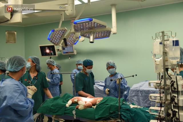 Ca phẫu thuật tách rời cặp song sinh đã thành công, đưa Trúc Nhi - Diệu Nhi ra khỏi phòng mổ - Ảnh 19.