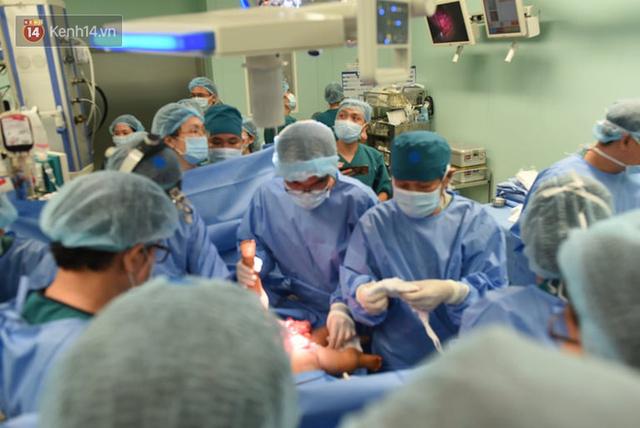 Ca phẫu thuật tách rời cặp song sinh đã thành công, đưa Trúc Nhi - Diệu Nhi ra khỏi phòng mổ - Ảnh 6.
