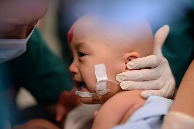 Ca phẫu thuật tách rời cặp song sinh đã thành công, đưa Trúc Nhi - Diệu Nhi ra khỏi phòng mổ - Ảnh 10.