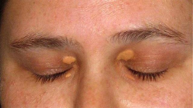 Trên khuôn mặt xuất hiện 3 tín hiệu này, cẩn thận với mỡ máu cao - Ảnh 1.