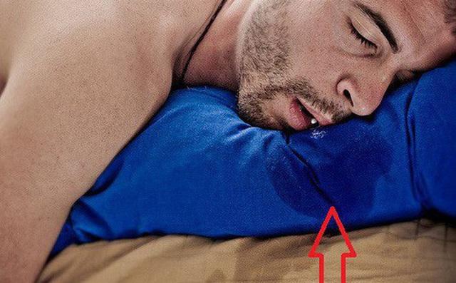 Trên khuôn mặt xuất hiện 3 tín hiệu này, cẩn thận với mỡ máu cao - Ảnh 2.