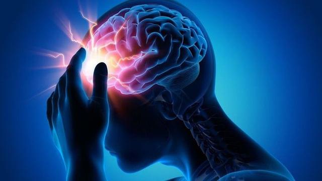 Cậu bé 16 tuổi bị xuất huyết não đột ngột, thói quen xấu trong cuộc sống chính là thủ phạm - Ảnh 3.