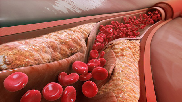 Một loại vắc-xin phòng bệnh tim mạch: Tiêm một mũi ở tuổi 20 sẽ khỏe mạnh đến suốt đời - Ảnh 2.