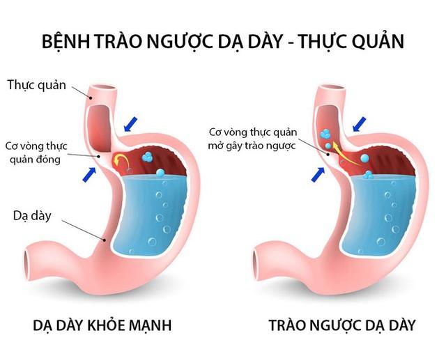 """Trào ngược dạ dày: Bệnh của """"thời đại mới"""", tác nhân lớn nhất gây ung thư dạ dày và 7 điều buộc phải làm để không rơi vào cảnh bệnh tình - Ảnh 1."""