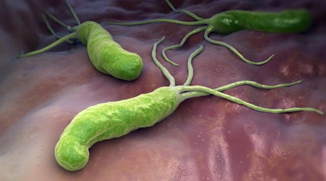 Loại vi khuẩn làm mòn bao tử mà WHO xếp vào nhóm gây ung thư số 1: Cực kỳ dễ lây qua 3 con đường, khuyến cáo tránh ăn 3 món để ngừa bệnh - Ảnh 1.