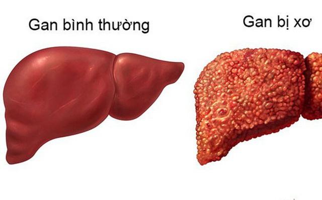 3 điều nên làm ngay để ngăn chặn xơ gan: Người có vấn đề về gan nên lưu ý sớm - Ảnh 1.