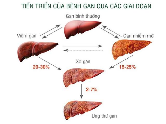 3 điều nên làm ngay để ngăn chặn xơ gan: Người có vấn đề về gan nên lưu ý sớm - Ảnh 2.
