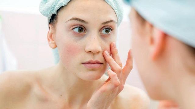 Lời khuyên của bác sĩ da liễu: Mùa đông này đừng quên chăm sóc làn da của bạn - Ảnh 2.