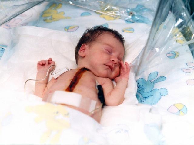 Bé gái hơn 10 ngày tuổi đã mang trong cơ thể trái tim của khỉ sau ca phẫu thuật cấy ghép phi thường khiến giới y khoa ngỡ ngàng - Ảnh 4.