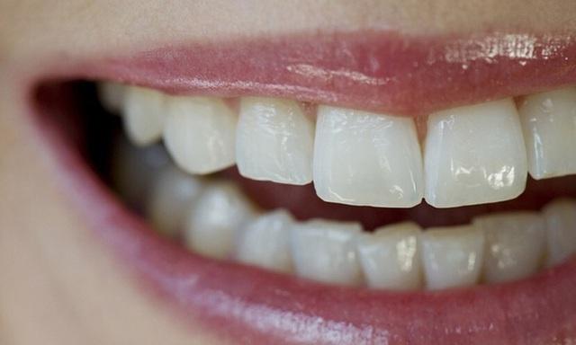 Bệnh tật thực sự từ miệng mà ra: Loại vi khuẩn thường cư trú trong miệng này có thể là tác nhân thúc đẩy các bệnh ung thư  - Ảnh 1.