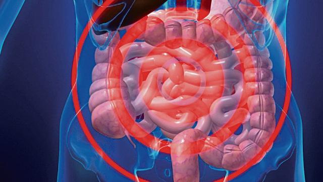 Những tín hiệu cảnh báo nội tạng của bạn quá bẩn: Hãy đối chiếu và nhanh chóng làm sạch - Ảnh 4.