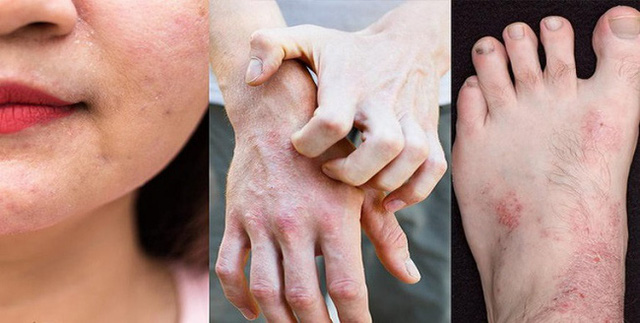 Bác sĩ da liễu cảnh báo bệnh về da rất dễ tái phát khi trời trở lạnh, dù trẻ hay già cũng đều khó tránh! - Ảnh 1.