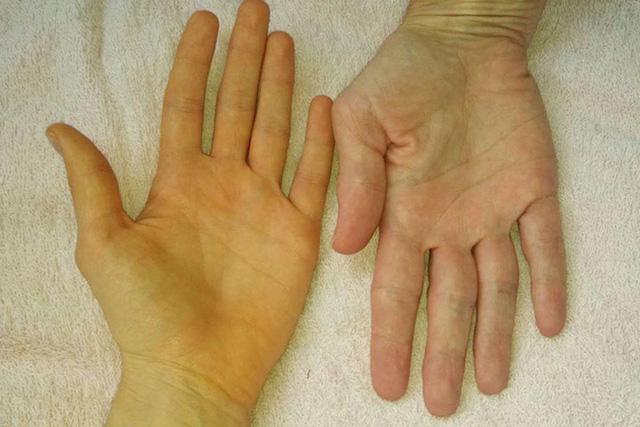 Nếu nhận thấy da có 4 màu sắc bất thường này rất có thể đó là tín hiệu của khối u ác tính mà bạn không nên chủ quan - Ảnh 2.