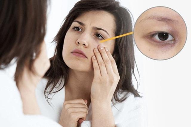 Bất kể nam hay nữ trên cơ thể xuất hiện 2 đen 2 hôi chứng tỏ suy giảm chức năng thận - Ảnh 1.