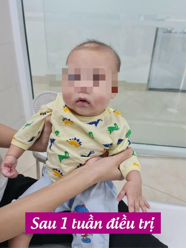 Phát hiện và điều trị thành công một ca bệnh cực hiếm chưa từng xuất hiện ở Việt Nam, cả thế giới chỉ có khoảng 300-500 trường hợp mắc - Ảnh 2.