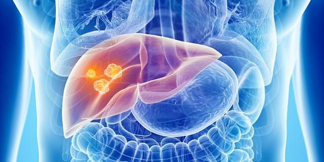 9 nhóm người có nguy cơ bị ung thư cao nhất: Hãy sớm biết để phòng tránh cẩn thận - Ảnh 1.