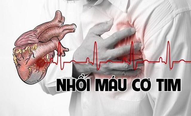 Đang lái xe thì gặp cơn đau như cá nằm trên thớt: 2 việc cần làm ngay khi thấy người bị nhồi máu cơ tim - Ảnh 2.