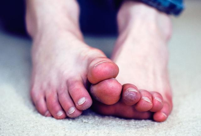 Lạnh chân là hiện tượng ai cũng lờ đi nhưng nó chính là tín hiệu cảnh báo cơ thể đang chống chọi với 5 loại bệnh này - Ảnh 1.