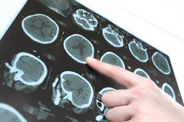 Một phụ nữ bị nhồi máu não và tử vong sau nửa tháng, bác sĩ thở dài: Ăn loại gia vị này hàng ngày thì làm sao mạch máu không bị tắc - Ảnh 2.