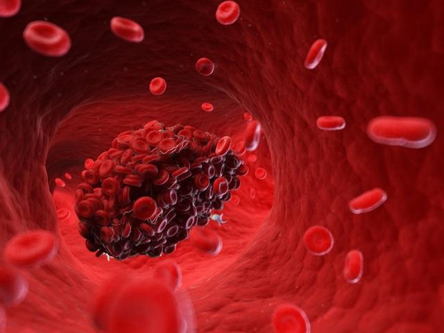 Phát hiện cục máu đông trong cơ thể: 6 dấu hiệu vàng giúp bạn nhận ra ngay! - Ảnh 1.