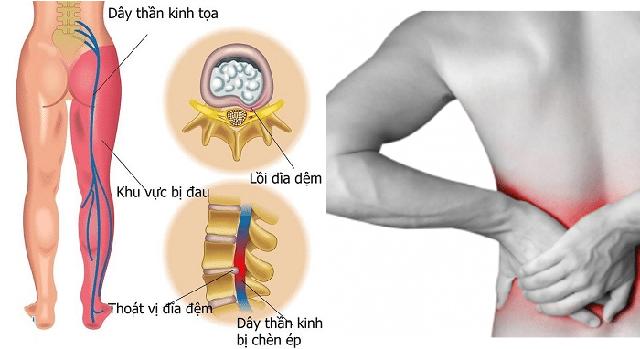 """Có tới 30% người Việt mắc căn bệnh thoát vị đĩa đệm: BS bệnh viện Việt Đức cảnh báo """"đừng để tới khi không cầm nổi đũa"""" mới đi khám: - Ảnh 1."""