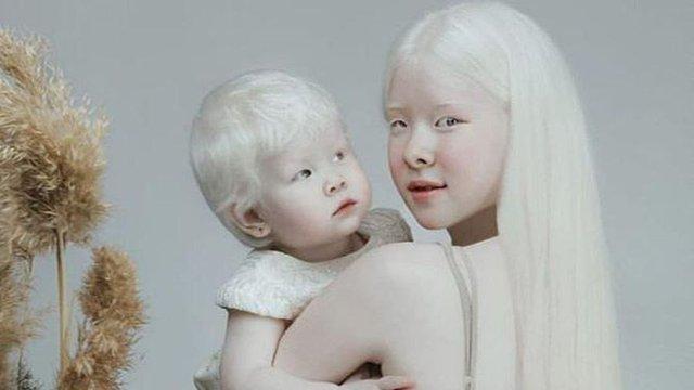 """Cặp chị em bạch tạng """"gây bão"""" vì vẻ đẹp không tì vết, thế nhưng người được chú ý hơn cả lại là cậu em trai thứ 3 trong gia đình  - Ảnh 2."""
