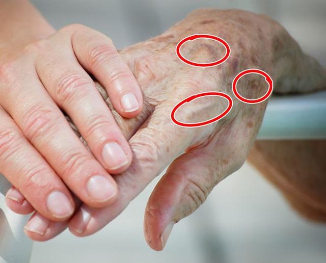 7 vùng trên cơ thể giúp bạn nhận biết dấu hiệu tuổi tác đã bắt đầu lộ rõ - Ảnh 2.