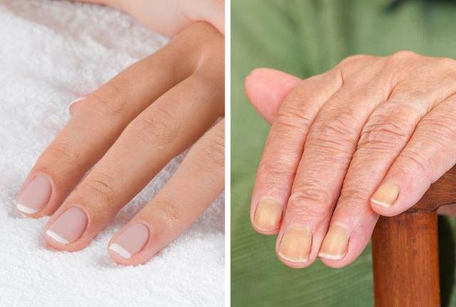 7 vùng trên cơ thể giúp bạn nhận biết dấu hiệu tuổi tác đã bắt đầu lộ rõ - Ảnh 3.