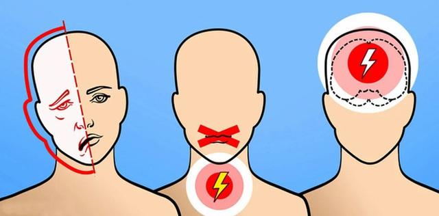 Giám đốc BV Đột quỵ: 80% trường hợp nhồi máu não có dấu hiệu này, biết sớm có thể cứu bạn khỏi đột quỵ - Ảnh 1.