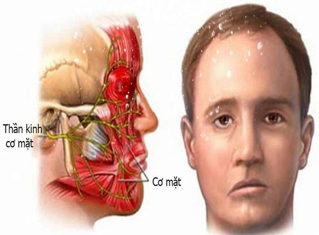 Tắm mùa đông, bệnh nhân trẻ bị liệt nửa mặt: Bác sĩ cảnh báo thêm căn bệnh do nhiễm lạnh đột ngột - Ảnh 1.