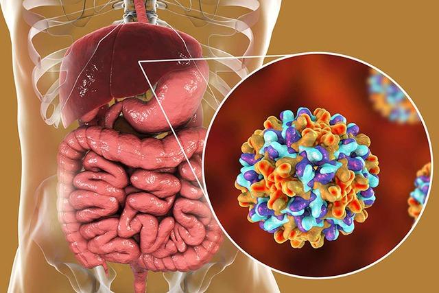 Bác sĩ chuyên khoa ung bướu điểm danh những người dễ mắc ung thư gan: Ai có đặc điểm này cần cẩn thận - Ảnh 1.