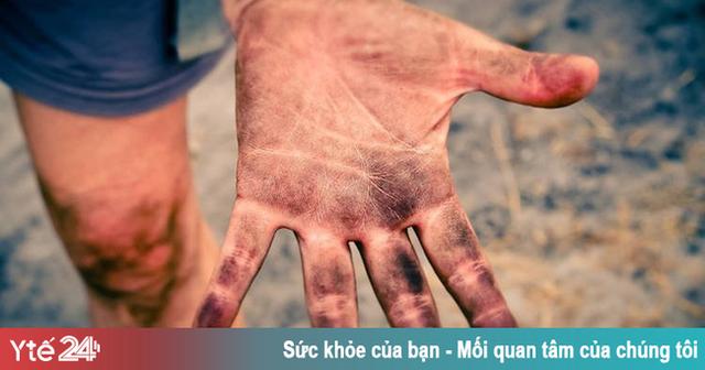 Bệnh hiếm gặp khiến con người không có dấu vân tay - Ảnh 1.