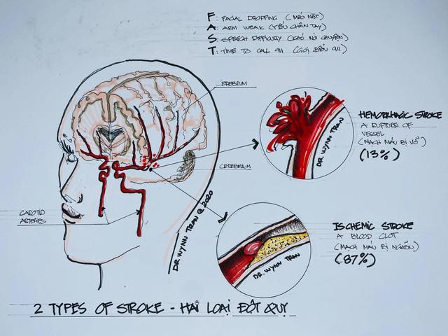 Đột quỵ não không chừa 1 ai: Bác sĩ Việt tại Mỹ chỉ ra cách để ngăn ngừa căn bệnh nguy hiểm này - Ảnh 1.