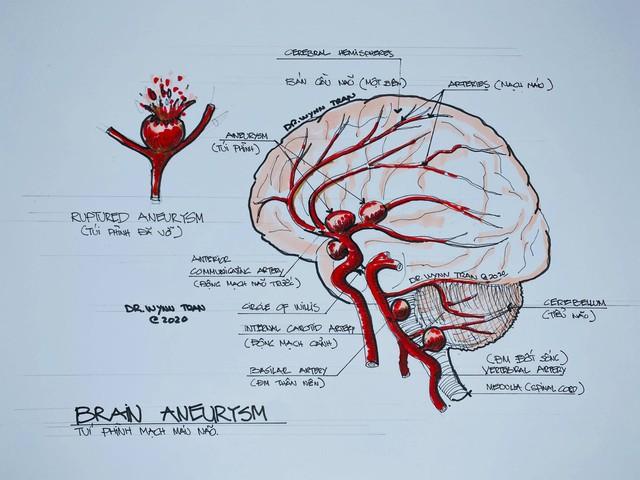 Đột quỵ não không chừa 1 ai: Bác sĩ Việt tại Mỹ chỉ ra cách để ngăn ngừa căn bệnh nguy hiểm này - Ảnh 2.