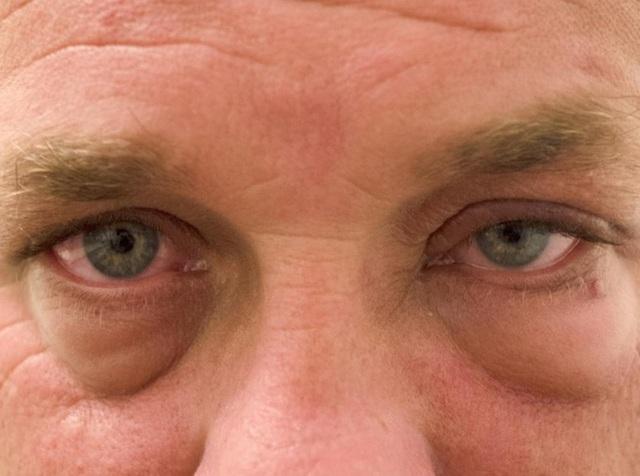 Bị phù nề không hẳn là bệnh thận, cần phải kiểm tra 7 căn bệnh liên quan này sớm hơn - Ảnh 2.