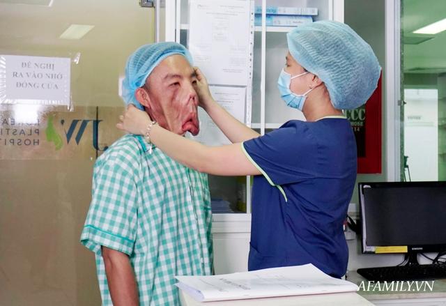 10 tiếng căng não phẫu thuật tìm lại cuộc đời cho người đàn ông mặt quỷ, 15 năm ngủ ngồi - Ảnh 1.
