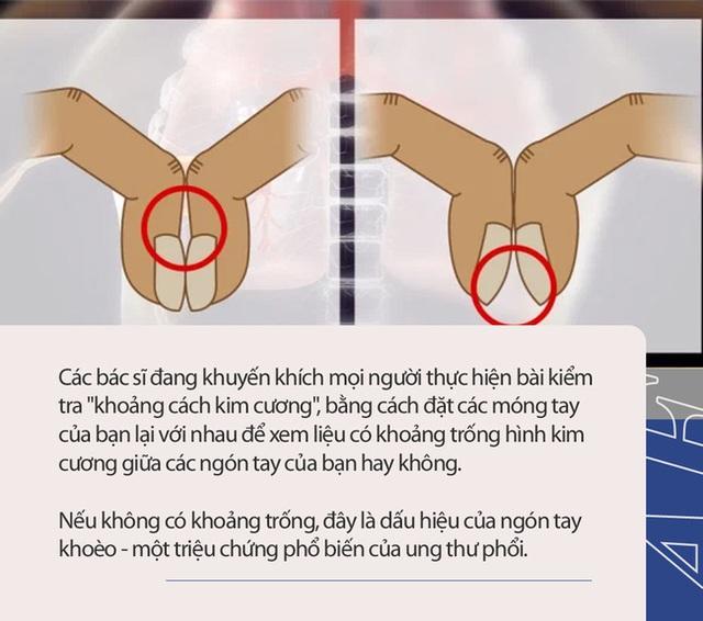 Bài kiểm tra đơn giản bằng 2 ngón tay có thể cho biết liệu bạn có nguy cơ bị ung thư phổi hay không - Ảnh 1.