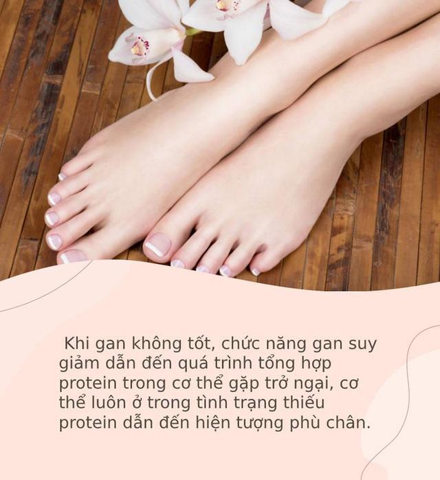 Bàn chân giống như đồng hồ sức khỏe: 3 dấu hiệu này trên bàn chân cho biết rất có thể gan của bạn đang gặp vấn đề - Ảnh 3.